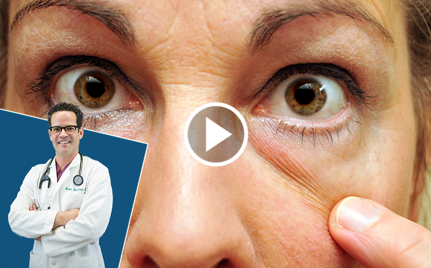 Doctor's #1 Tip To Reverse Puffy Eyes and Bags (DO IT DAILY!)