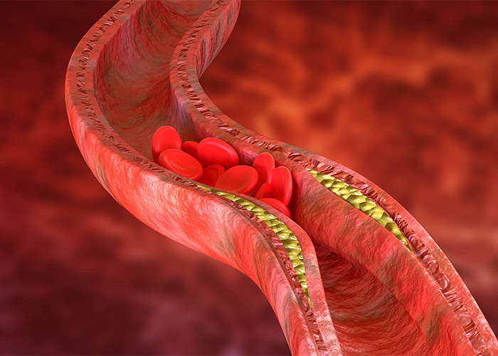 atherosclerosis is an accumulation of cholesterol in arteries
