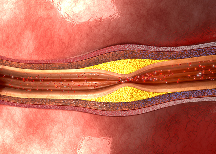 atherosclerosis diagram of a clogged artery