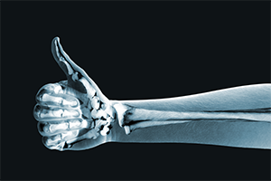 xray image of an arm doing a thumbs up