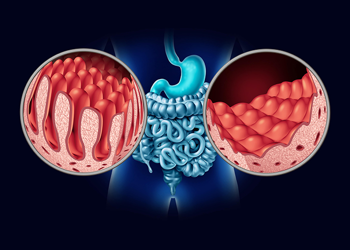 illustration of the intestines and bowels