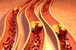 graphic of clogged arteries with cholesterol plaque