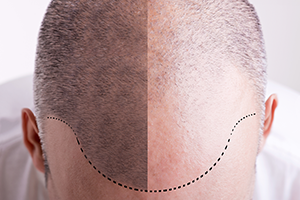top of a man's head with difference showing hair loss before and after