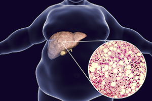 graphic of an obese man with fatty liver and a zoomed in image of fatty liver cells