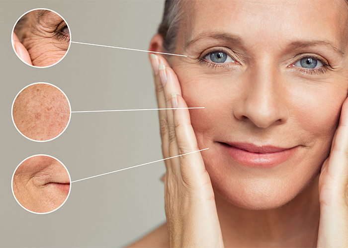 female face wrinkles and skin imperfection
